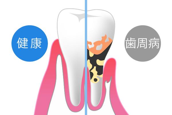 歯周病は、全身のあらゆる病気を悪化させる可能性も!