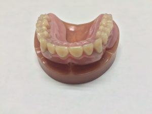 磁性アタッチメント義歯1