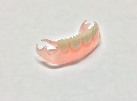 レジン床義歯(歯科用プラスティック樹脂)…保険適用内