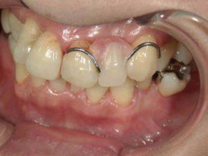 レジン床義歯1(保険)