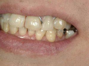 レジン床義歯2(保険)