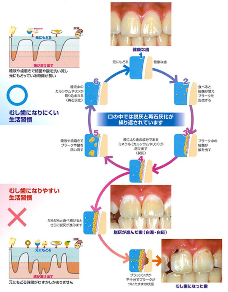虫歯になるメカニズムと、注意すべきポイントを理解しましょう